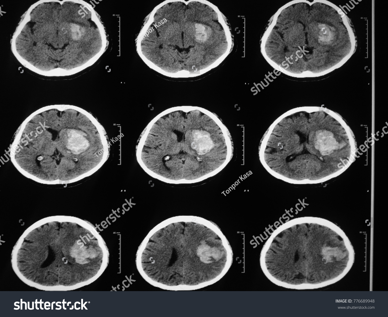 CT Brain Case Intraventricularl Hemorrhage IVH Bleeding Brain Stock ...
