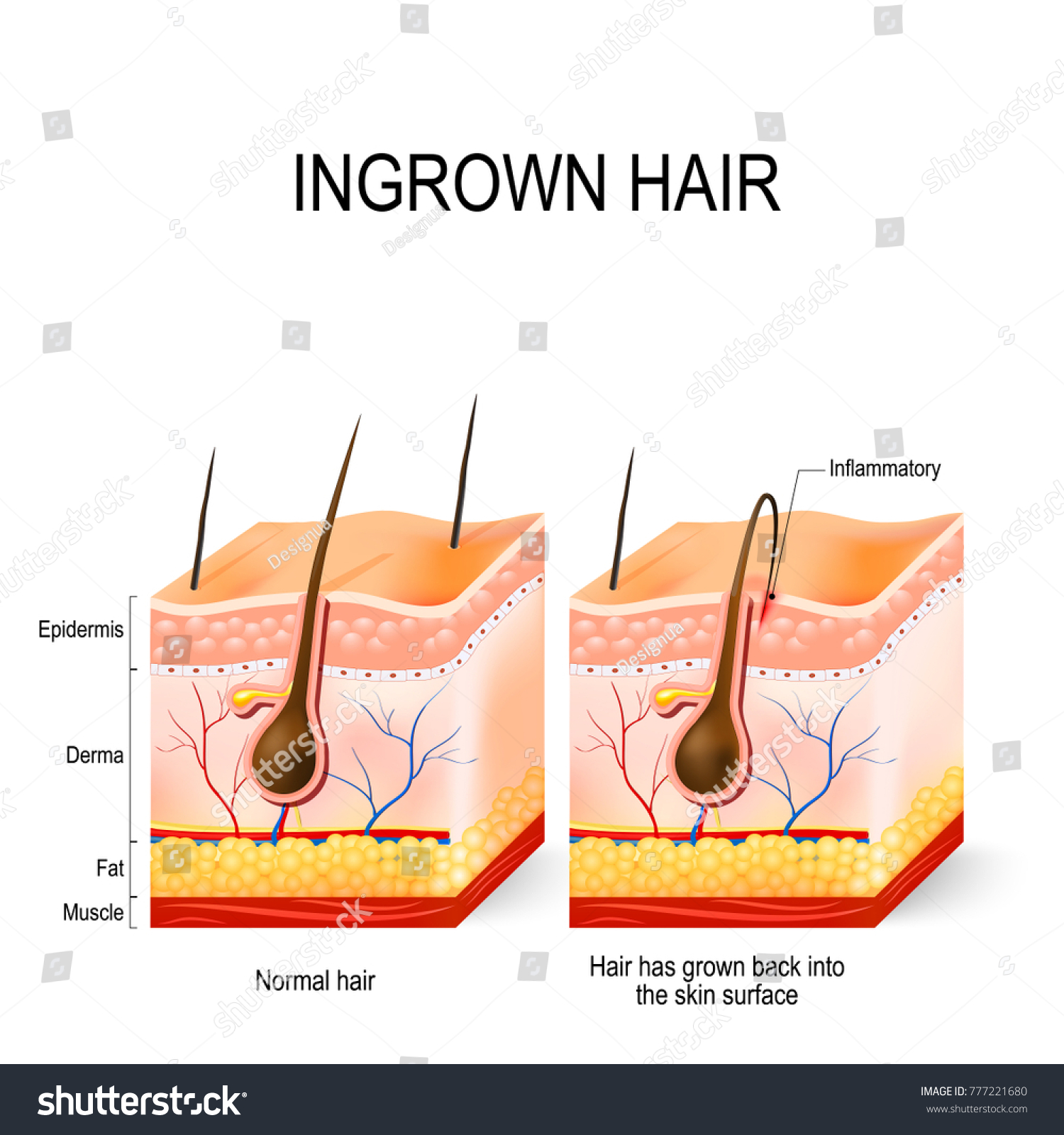Ingrown Hair After Having Buried Hair Stock Illustration 777221680
