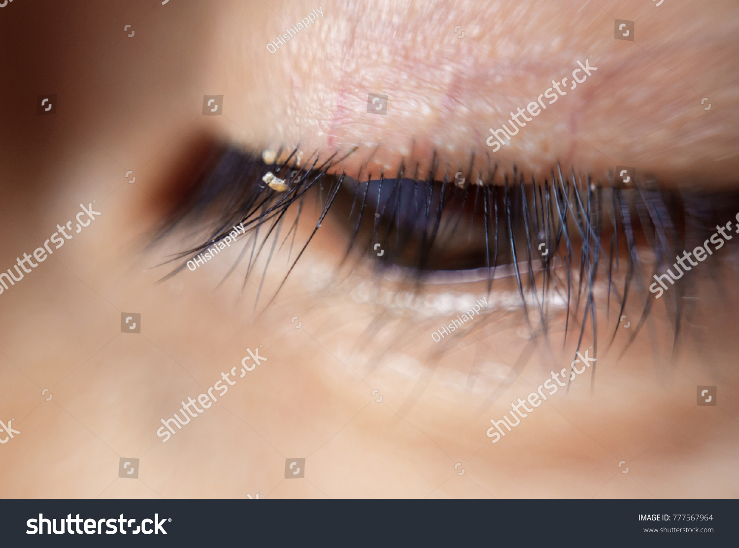Close Severe Conjunctivitis Eyelash Mites Stock Photo Edit Now