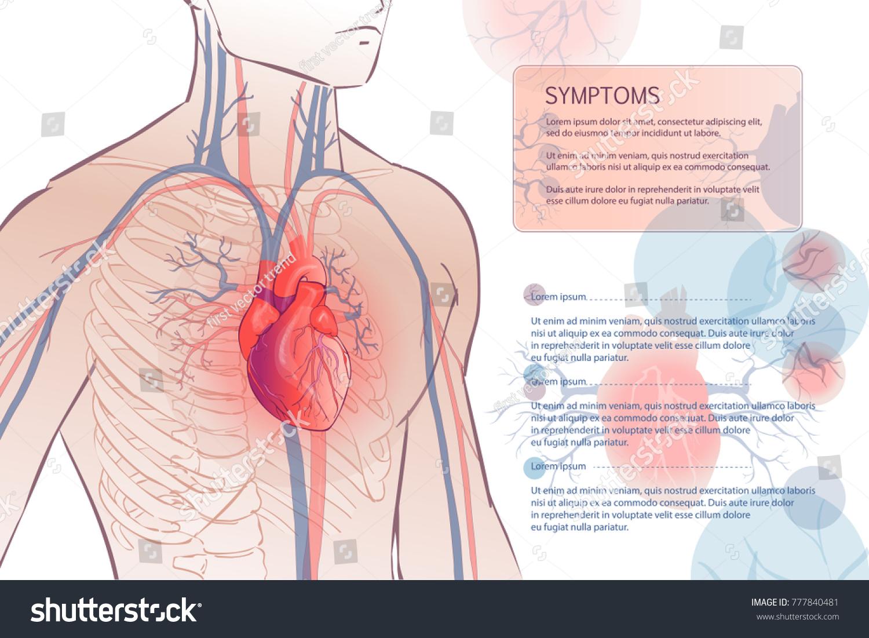 3 D Illustration Human Circulatory Vascular System Stock Vector ...