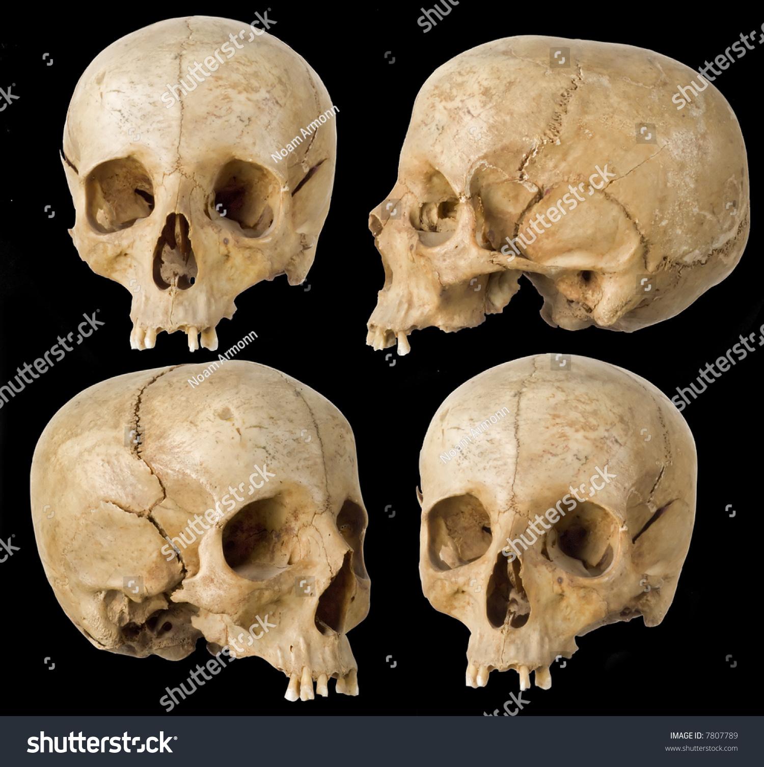 human skull four angles on black stock photo 7807789