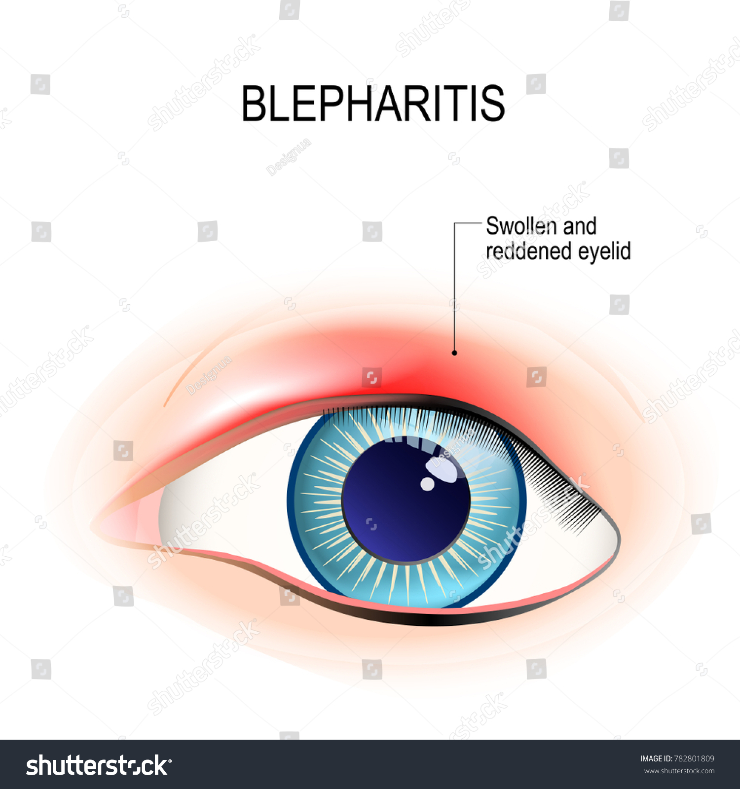 Eye Human Blepharitis Inflammation Reddening Eyelid Stock Vector ...
