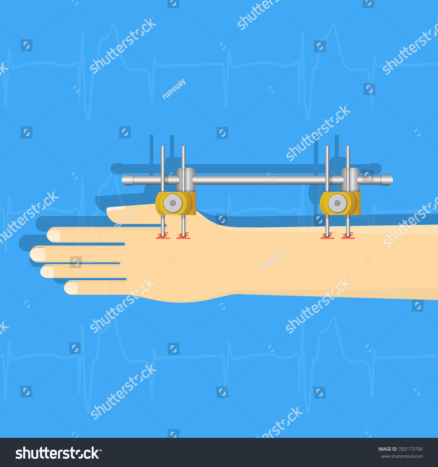External Fixation Fixator Treatment Broken Bone Stock Vector ...
