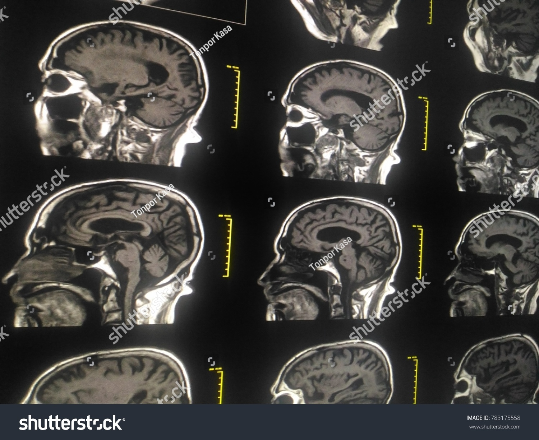 Soft Blurry Image MRI Brain Orbits Normal Stock Photo (Edit Now ...