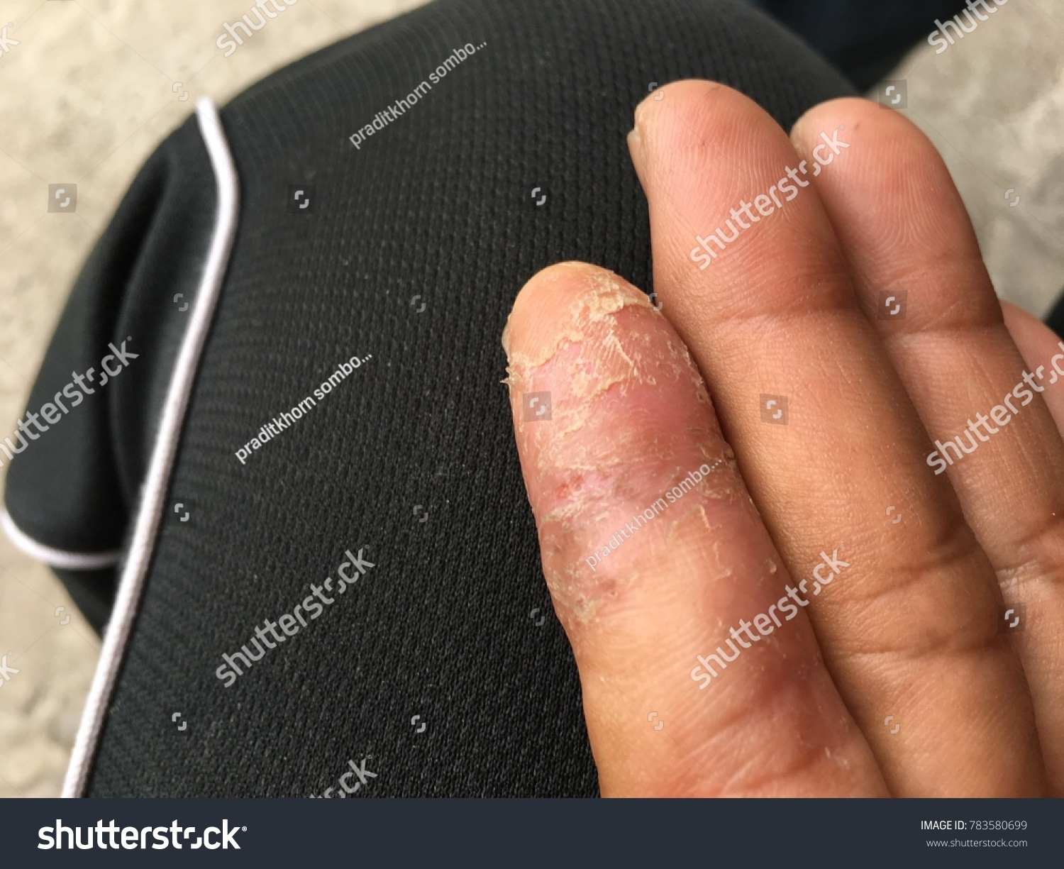 Close Nail Fungus On Finger Hand Stock Photo (Royalty Free ...