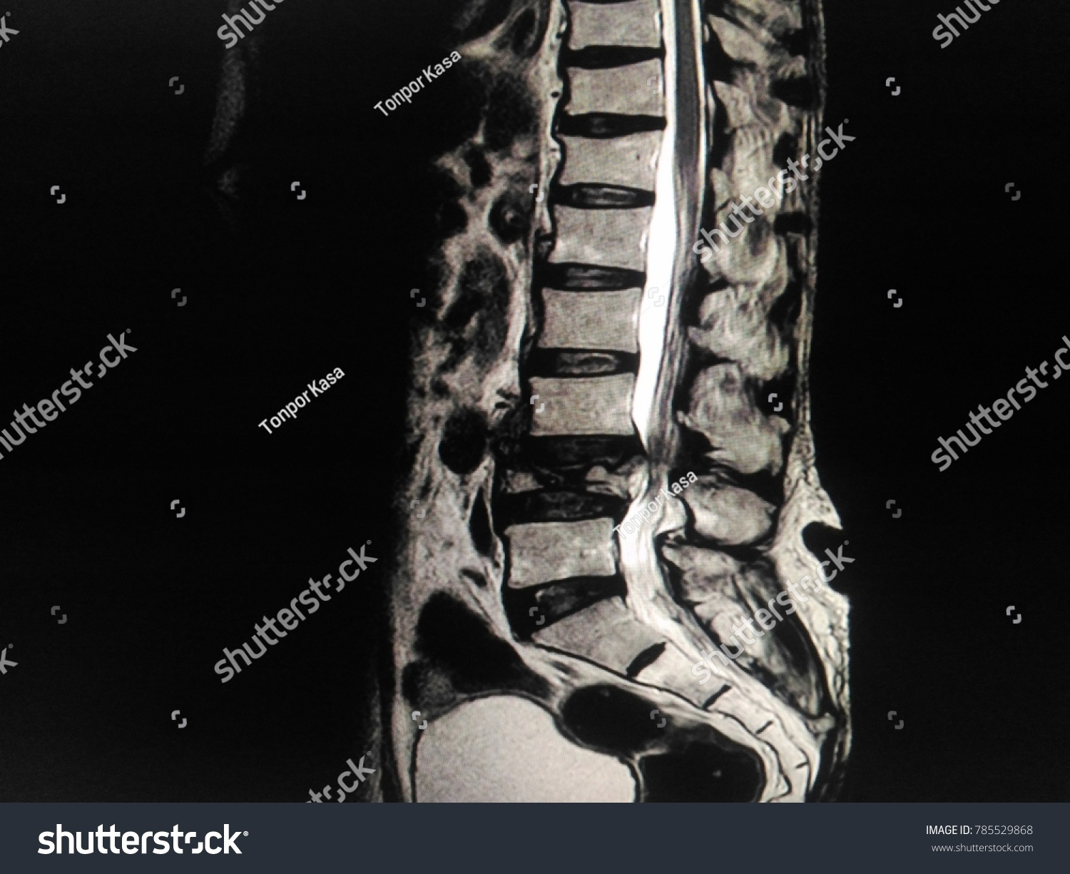 Soft Blurry Image MRI Lumbar Spine Showing Stock Photo (Edit Now ...
