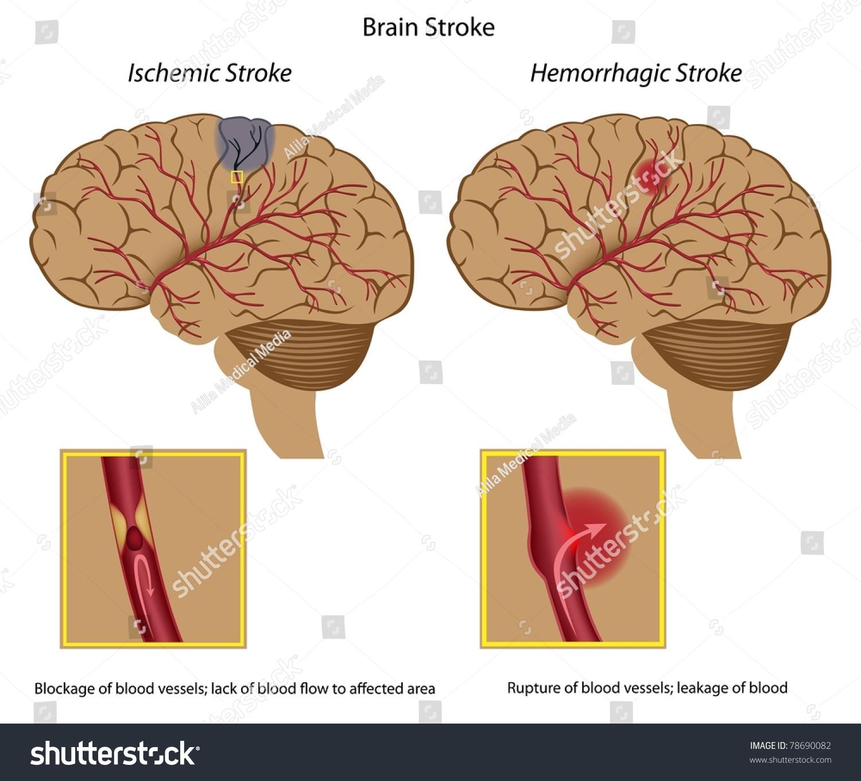 Brain Stroke Stock Illustration 78690082 - Shutterstock