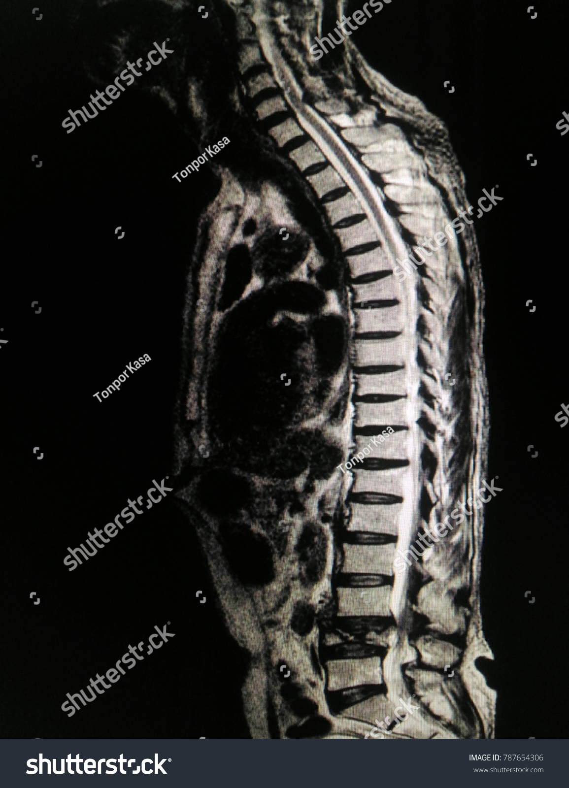 Soft Blurry Image MRI Lumbar Spine Collapsed Stock Photo (Edit Now ...