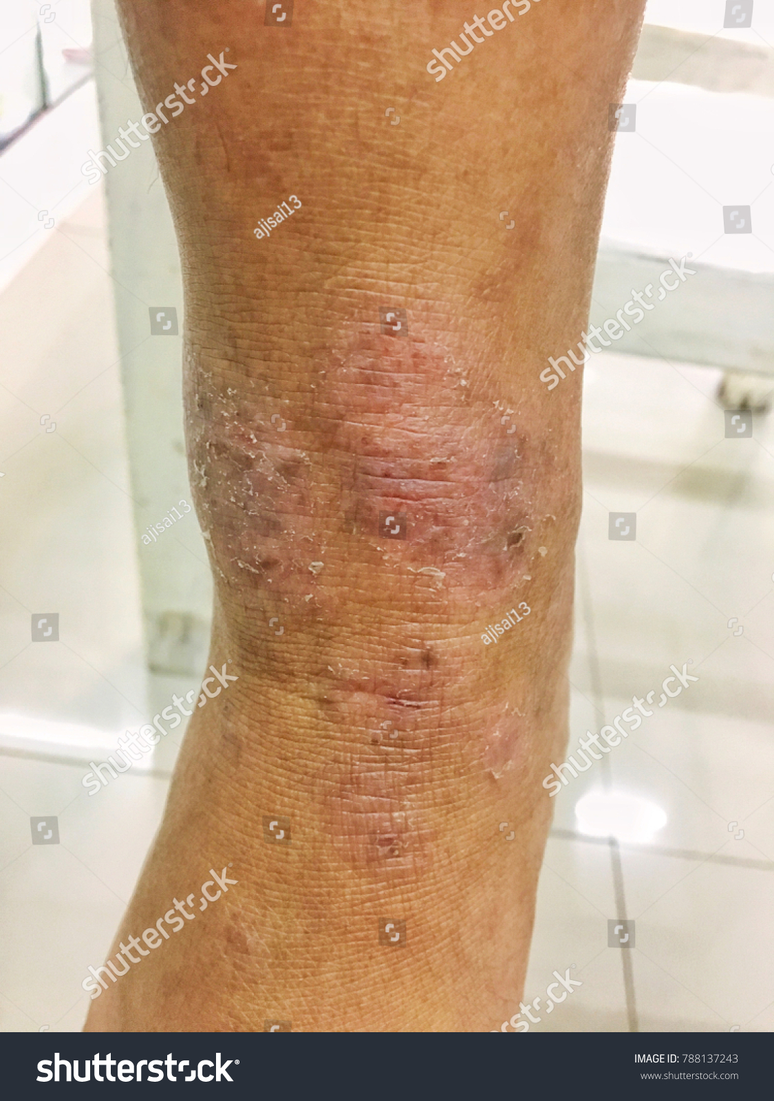 Skin Infection Some Abscess Bloodfungal Infectiondry Stock Photo Edit Now 788137243