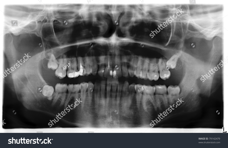Teeth Xray Panorama Stock Photo (Royalty Free) 79142479 - Shutterstock