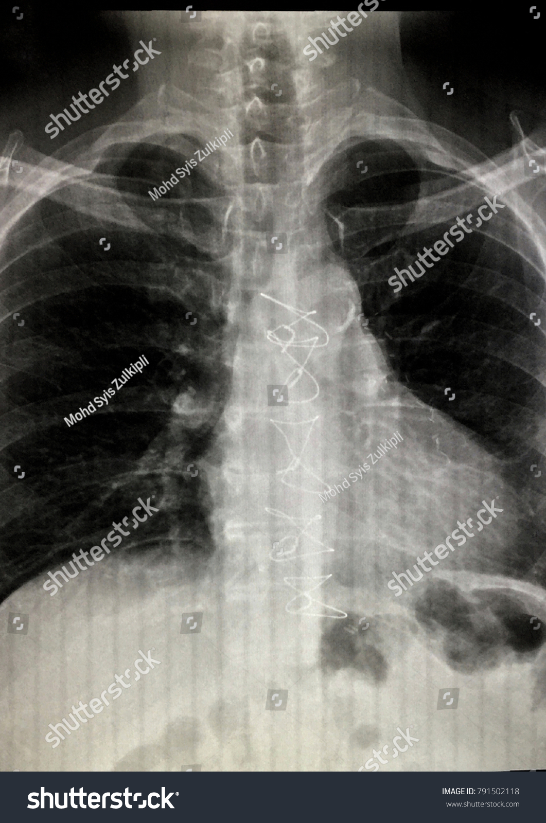 Chest X Ray Showing Sternotomy Wire Post Stock Photo (Royalty Free ...