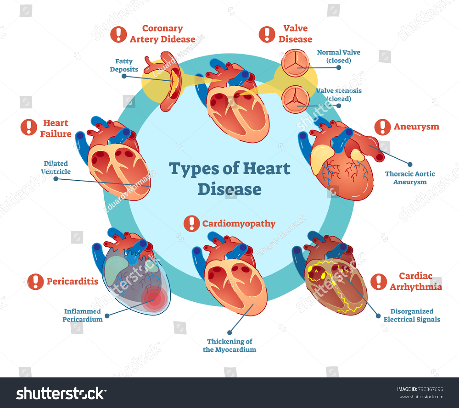 Types Of Heart Disease Collection Vector Illustration Diagram Educational Medical Information