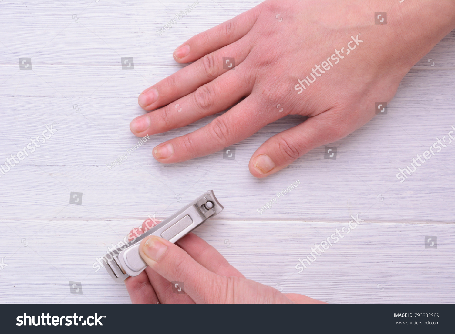Damage Nail After Using Shellac Gellacquer Stock Photo (Royalty Free ...