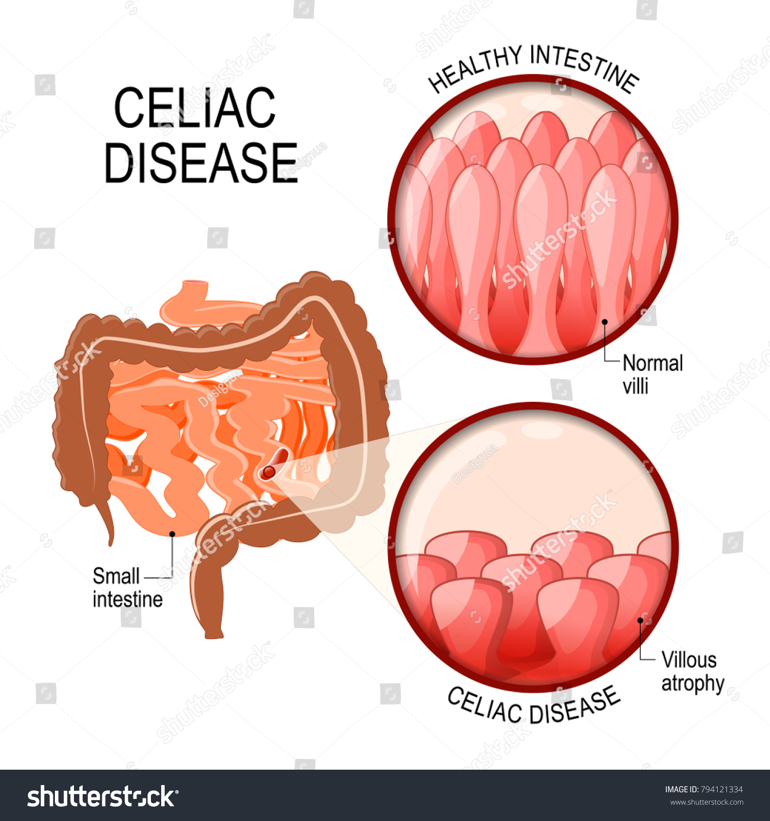 Celiac Disease Small Intestinal Normal Villi Stock Vektorgrafik