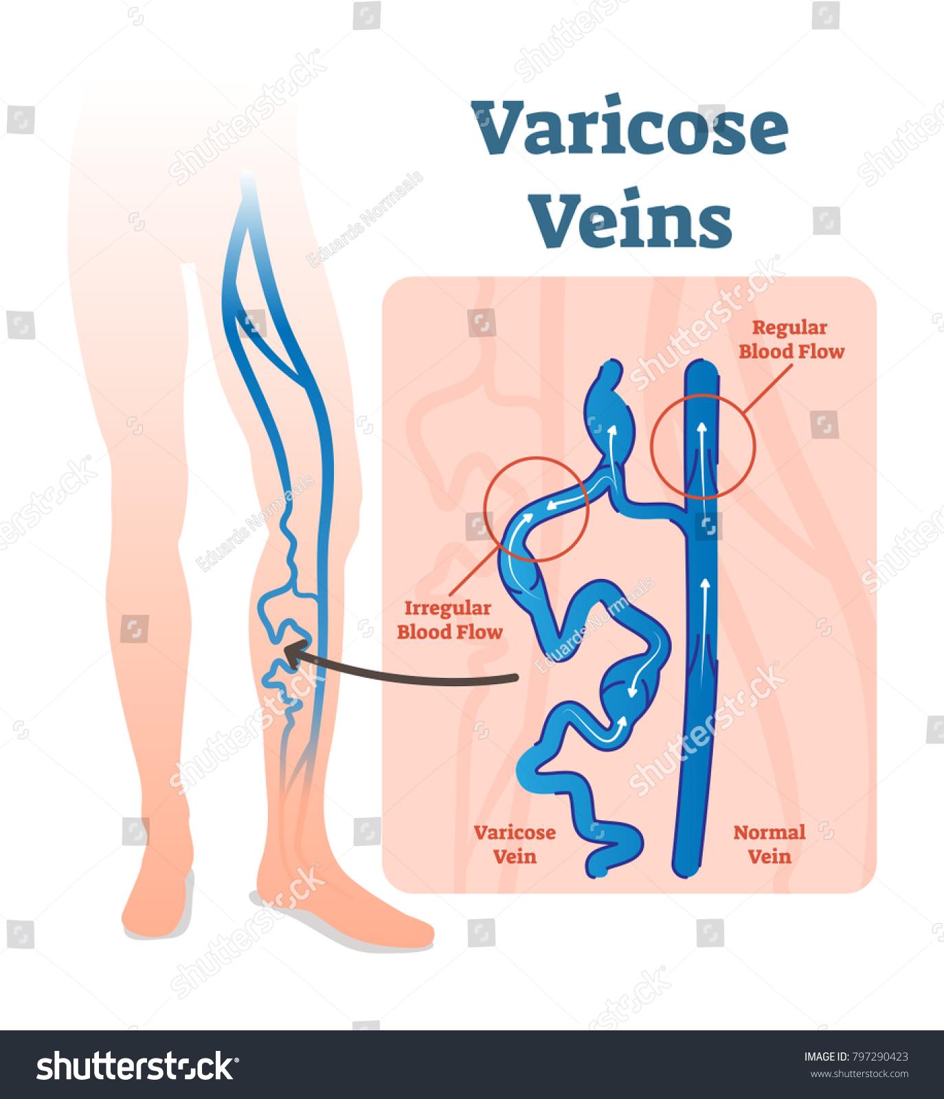 Varicose Veins Irregular Blood Flow Healthy Stock Vector Royalty