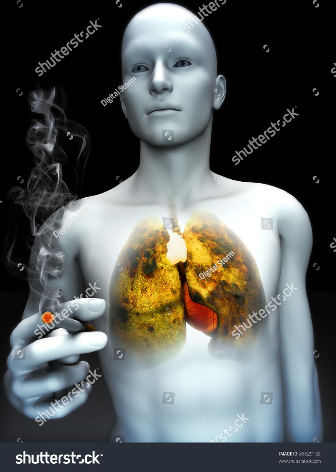 smoking kills Gallery