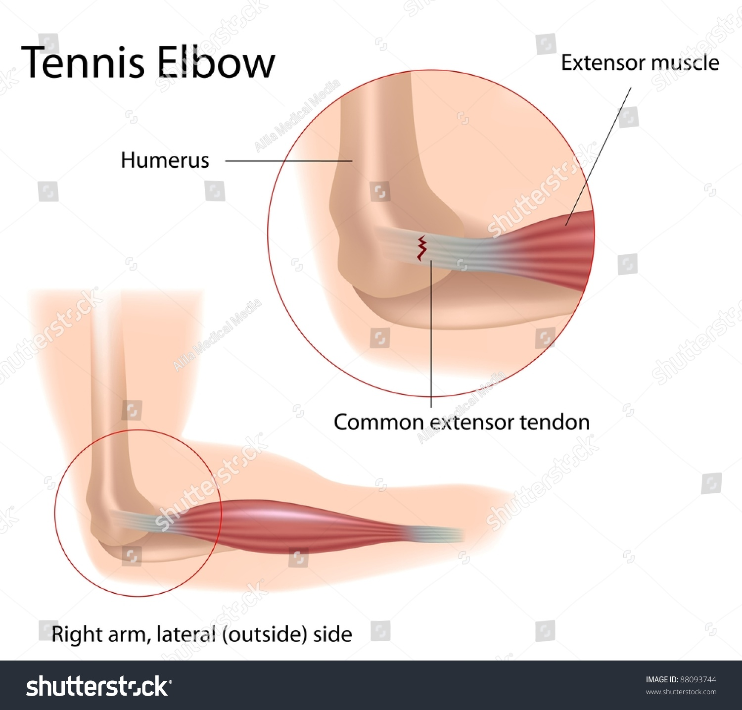 Tennis Elbow Tear Common Extensor Tendon Stock Illustration 88093744