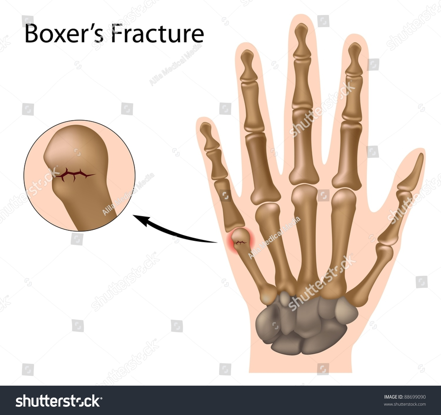 Boxers Fracture Most Common Finger Fracture Stock Illustration ...
