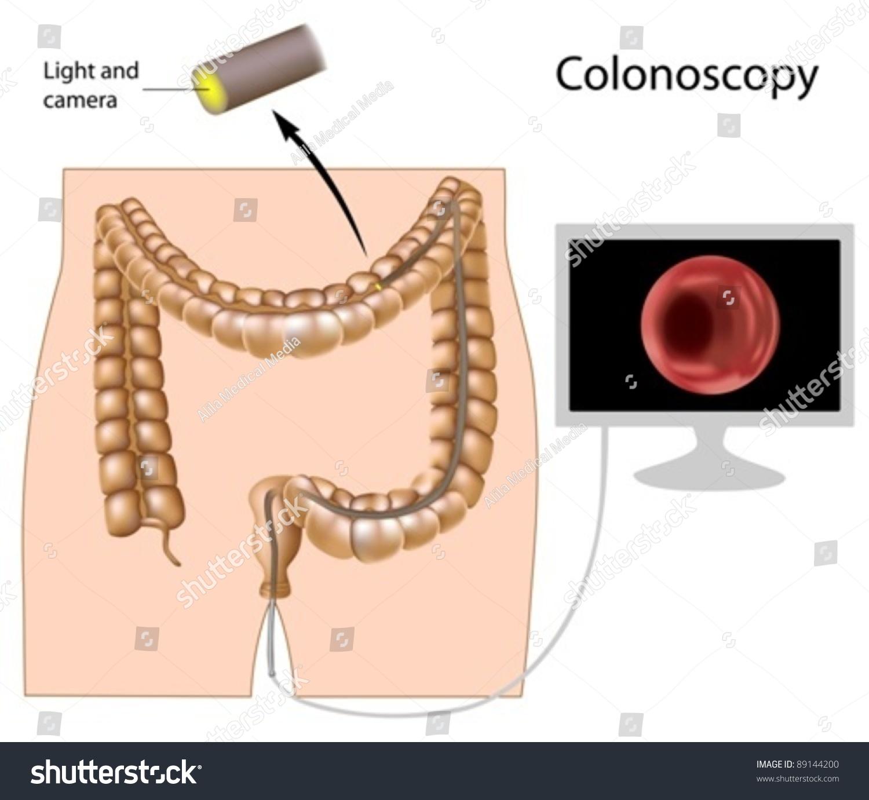 Colonoscopy Procedure Used For Screening Colon Diseases