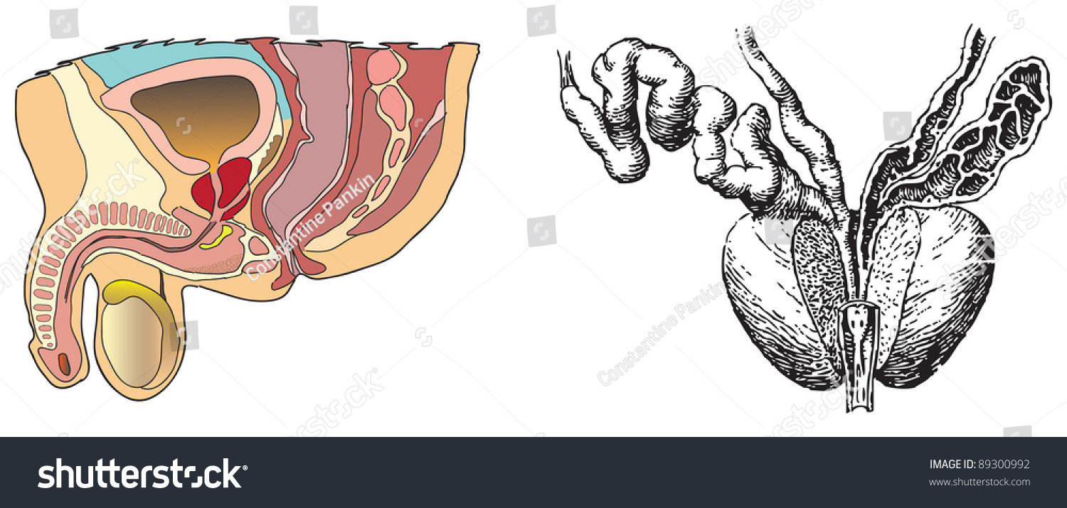 Visual Aids Prostate Diseases Vector Illustration Stock Vector HD ...