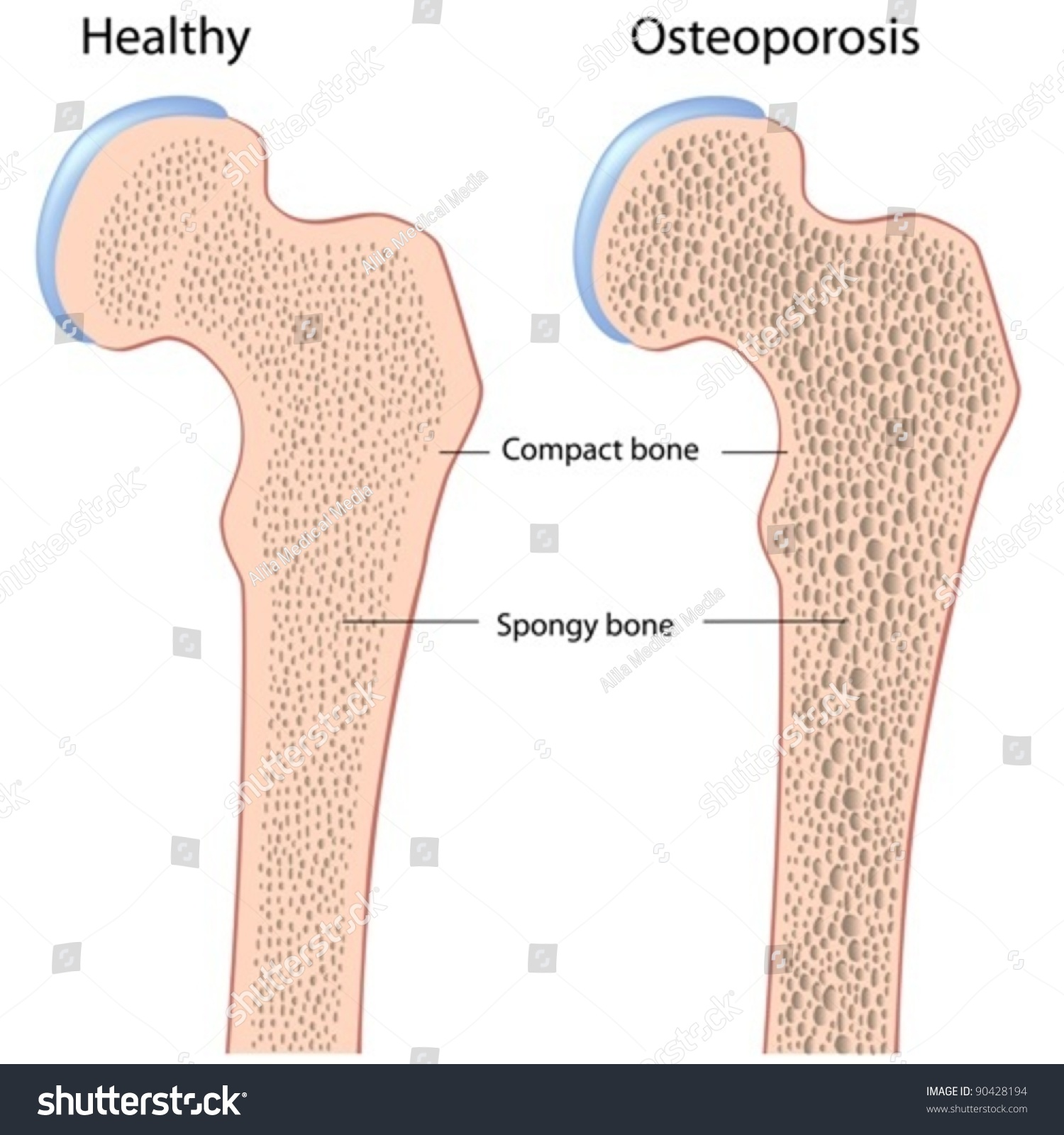 Femur Bone Hip Anatomy Normal Osteoporosis Stock Vector 90428194