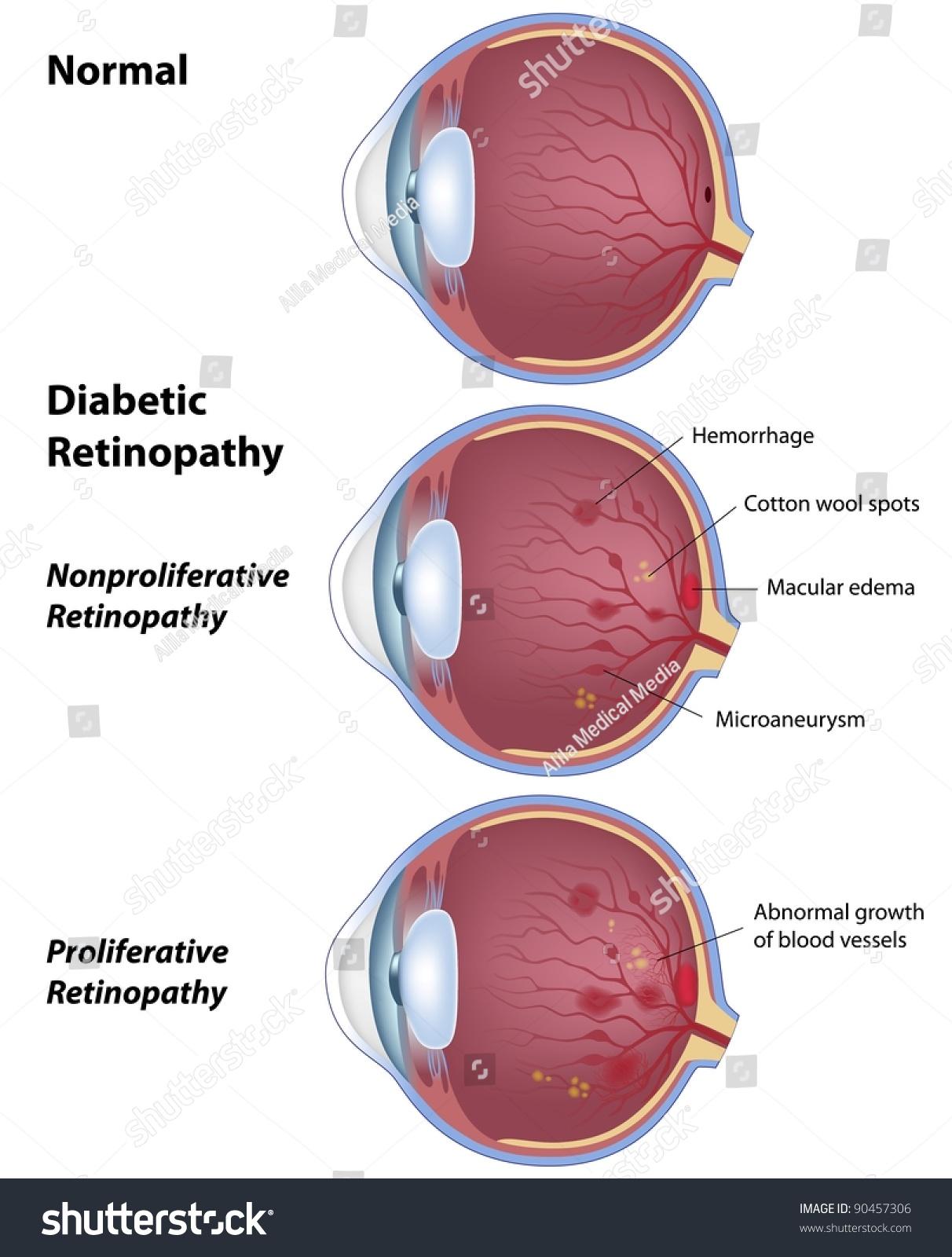 Diabetic Retinopathy Eye Disease Due Diabetes Stock Illustration ...