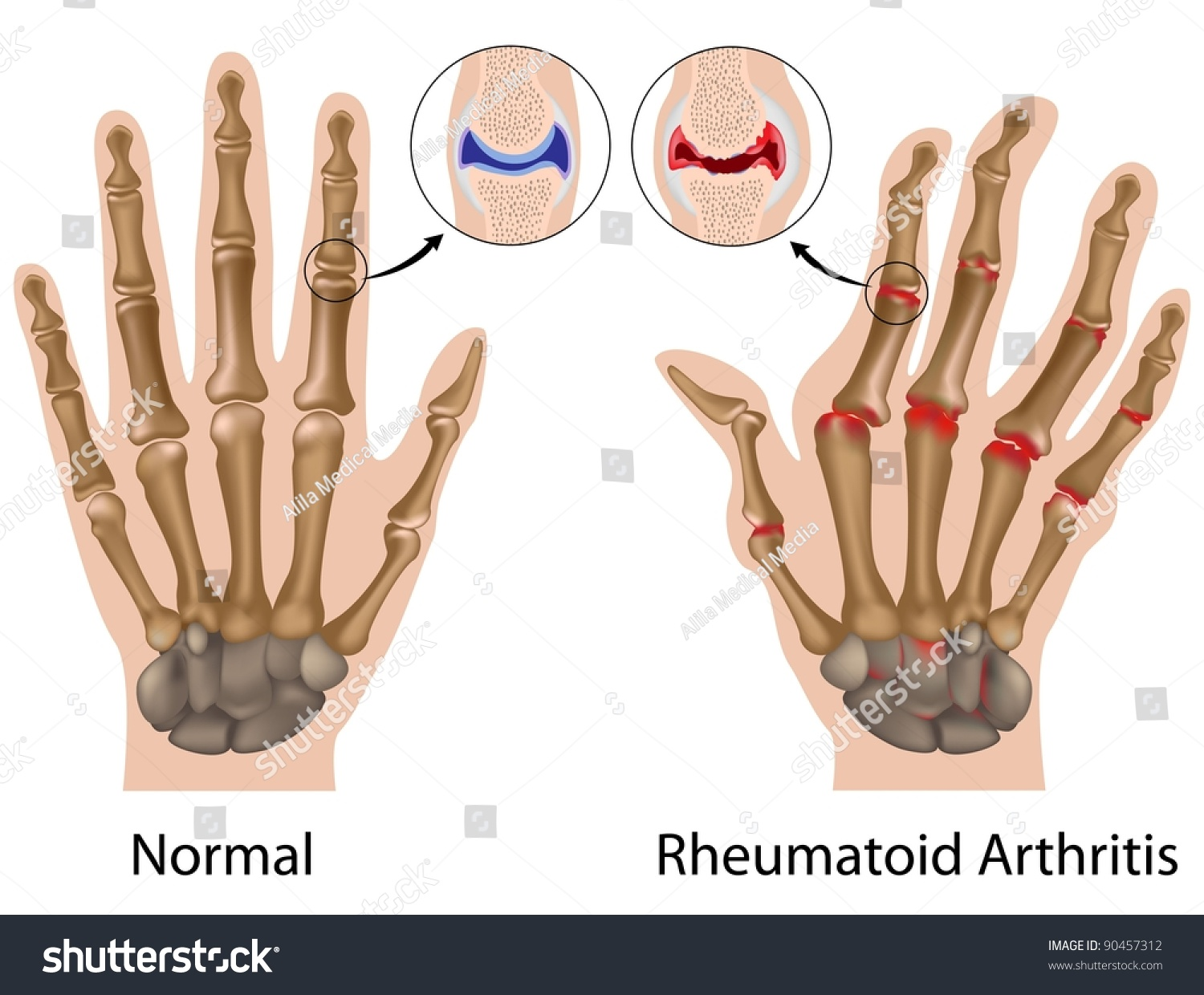 Rheumatoid Arthritis Finger Joints Details Hand Stock Illustration ...