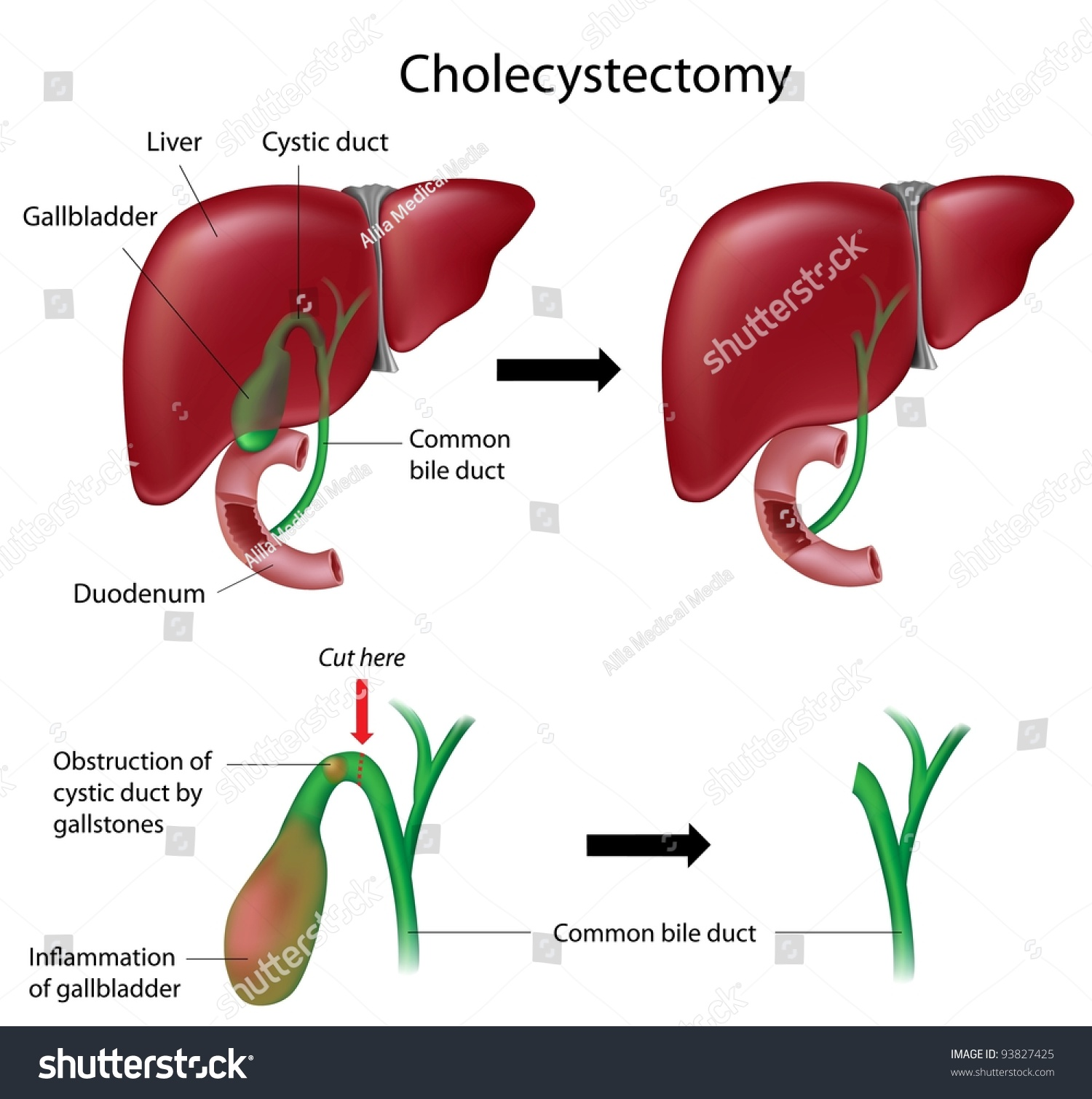 Cholecystectomy Gallbladder Removal Surgery Stock Illustration ...