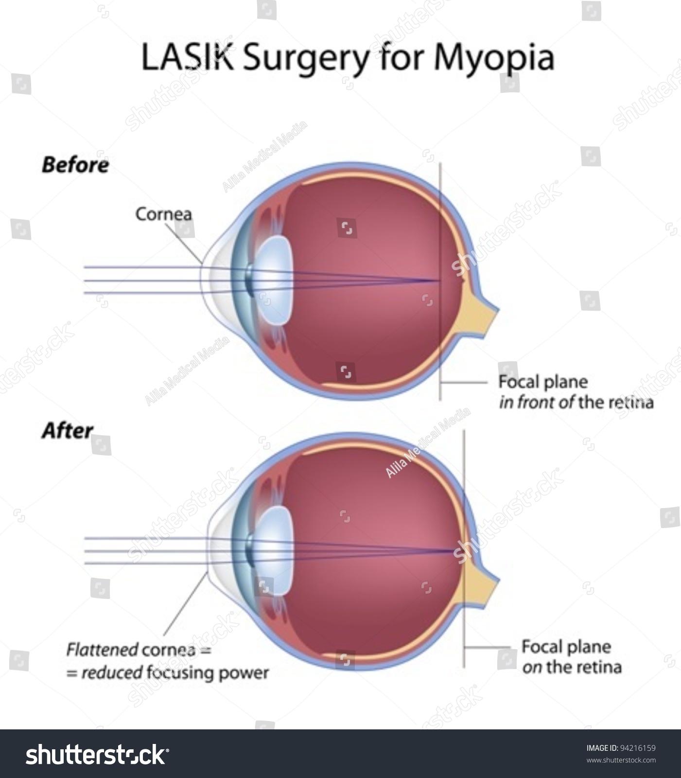 Lasik Laser Vision Correction Testimonials Denver: Lasik Eye Surgery Myopia Stock Vector 94216159