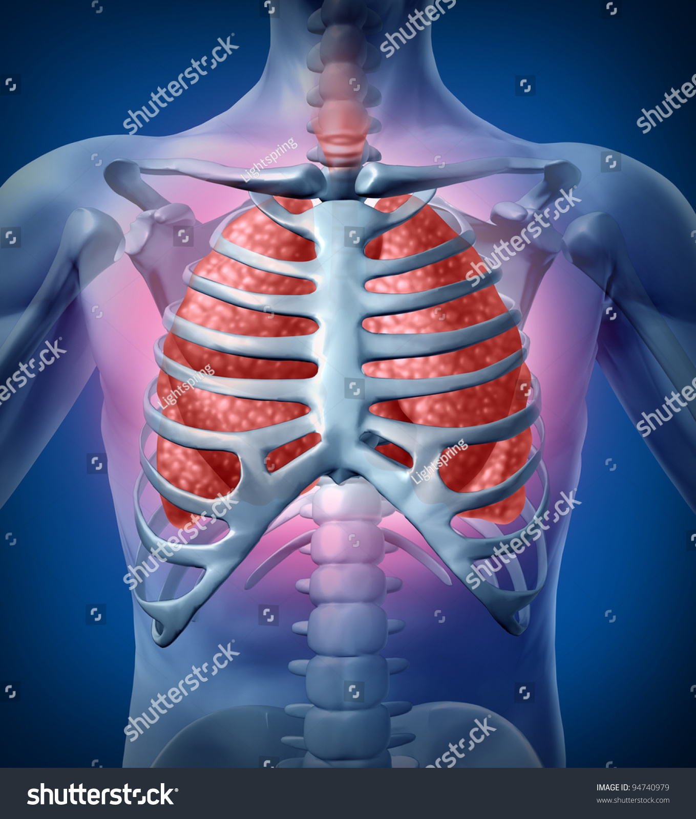 Human Lung Infection Medical Illustration With A Body