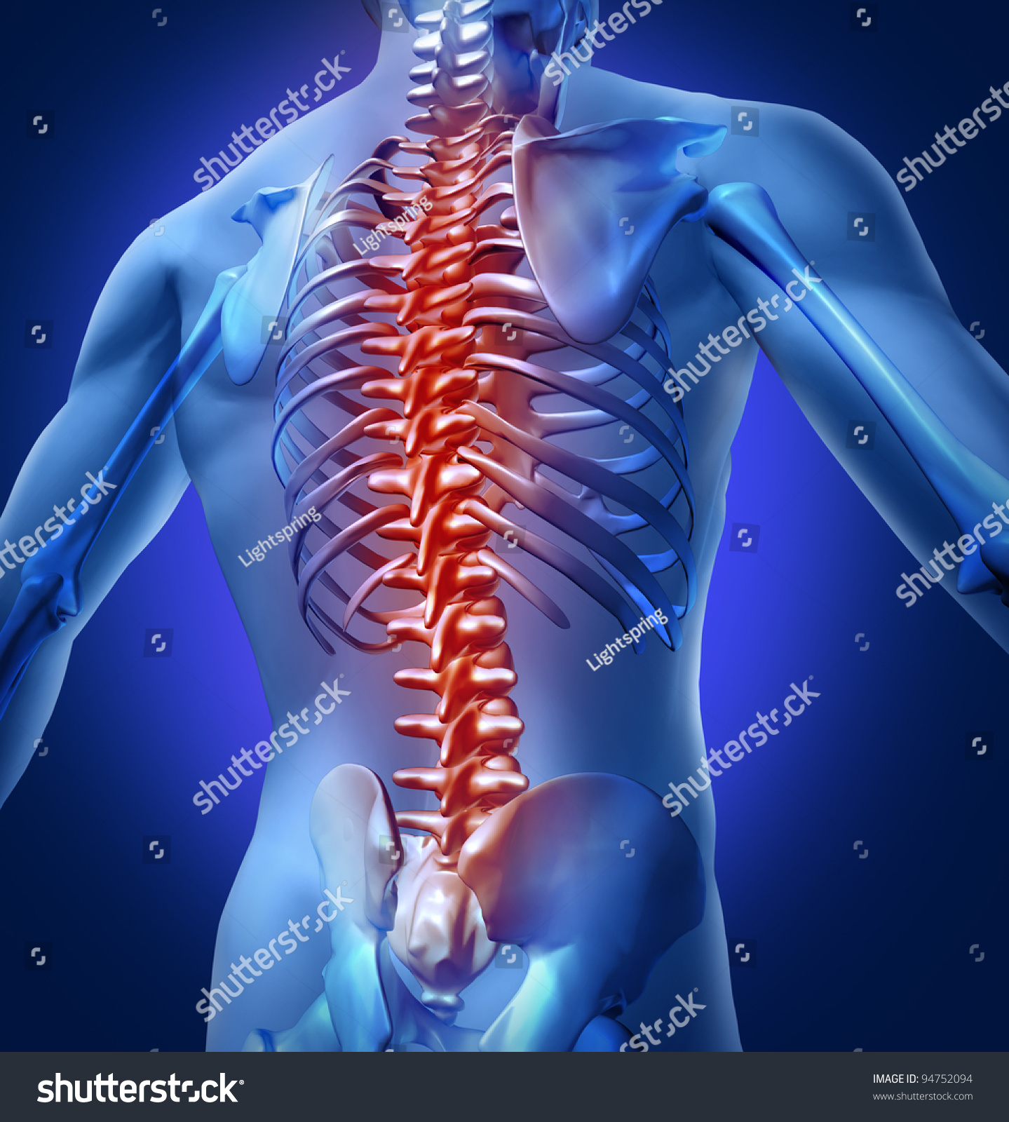 Human Backache Back Pain Upper Torso Stock Illustration 94752094 ...