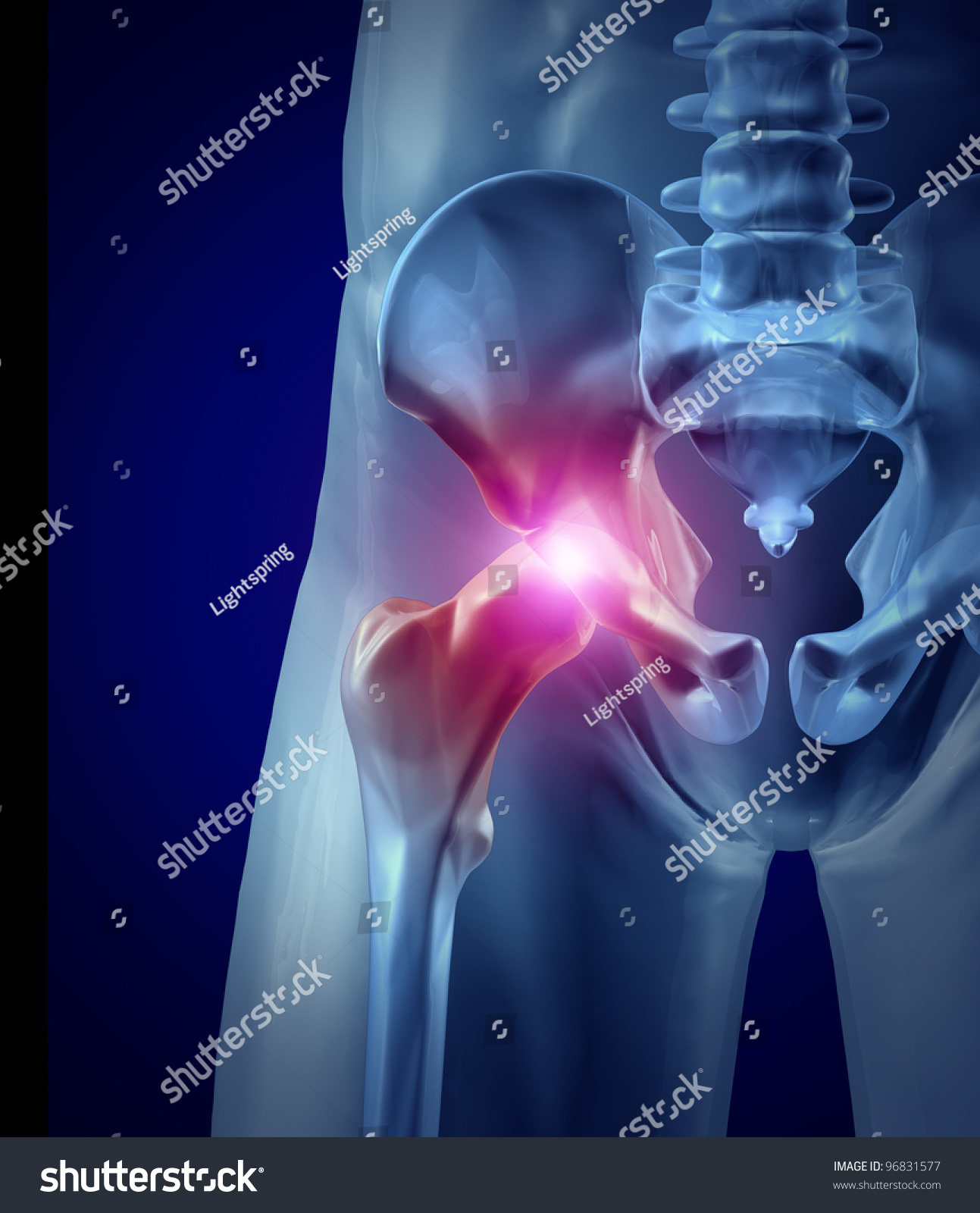 hip pain inflamed joint xray medicalのイラスト素材 96831577
