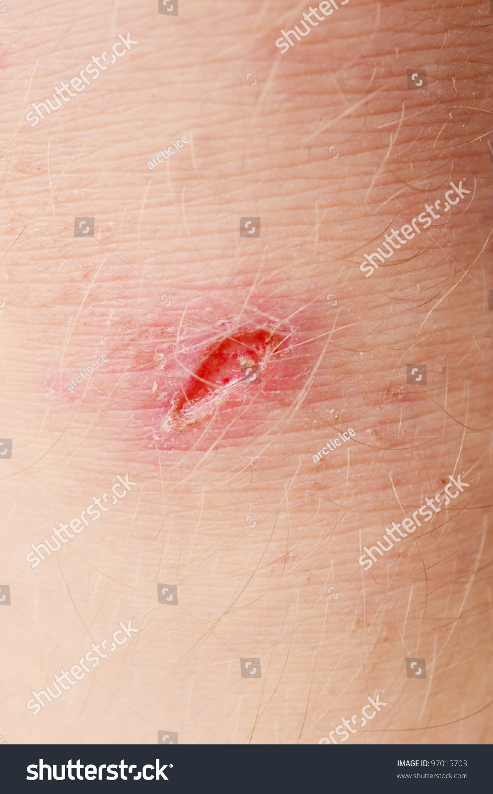 scar on human skin stock photo 97015703 scar on human skin stock photo 97015703