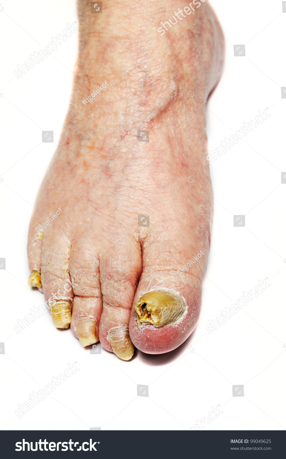 Fungus Infection On Nails Mans Foot Stock Photo 99049625 ...
